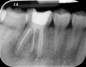 , Root Canal Treatments